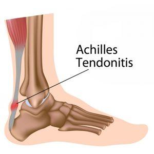 achilles-tendonitis - ankle surgeon pmb