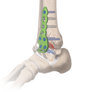 ankle fusion 1