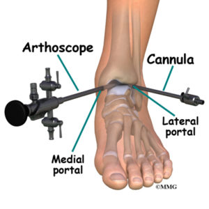 ankle scope - foot surgery