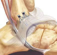 brohstrom - ankle surgeon